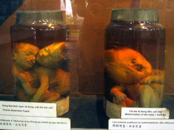Agent Orange Babies